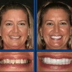 Austin Cosmetic Dentistry Can Get You Ready for That Special Event