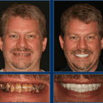 Austin Cosmetic Dentistry At It's Best -The Value of a Beautiful Smile