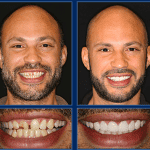 Let An Austin Cosmetic Dentist Transform Your New Year with a Smile Makeover!