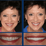 An Austin Cosmetic Dentist Can Create Life Changing Smiles!