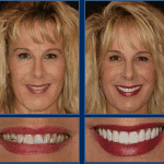 An Austin Cosmetic Dentist Can Get You Ready For Spring With a Smile Makeover! Call today to schedule a Complimentary Consultation at 512.333.7777.