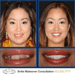 Austin Sedation Dentistry