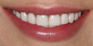 thecosmeticdentistsofaustin-Cassie-smile-After