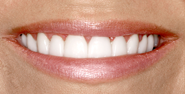 thecosmeticdentistsofaustin-anna-smile-after
