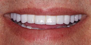 thecosmeticdentistsofaustin-ed-smile-after