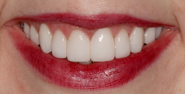 thecosmeticdentistsofaustin-emily-smile-after