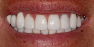 thecosmeticdentistsofaustin-james-smile-after