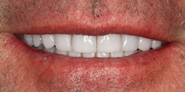 thecosmeticdentistsofaustin-jason-smile-after