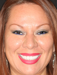 thecosmeticdentistsofaustin-johnna-after