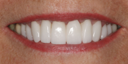 thecosmeticdentistsofaustin-joy-smile-after