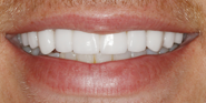 hecosmeticdentistsofaustin-justin-smile-after