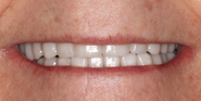 thecosmeticdentistsofaustin-karen-smile-after