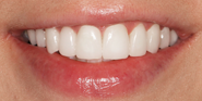 thecosmeticdentistsofaustin-layla-smile-after