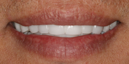 thecosmeticdentistsofaustin-mike-smile-after