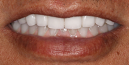 thecosmeticdentistsofaustin-moses-smile-after