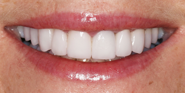 thecosmeticdentistsofaustin-sarah-smile-after