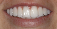 thecosmeticdentistsofaustin-sarah2-smile-after