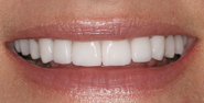 thecosmeticdentistsofaustin-terri-smile-after