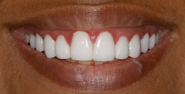 thecosmeticdentistsofaustin-ayushi-smile-after