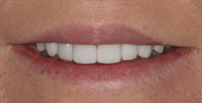 thecosmeticdentistsofaustin-brenda-smile-after