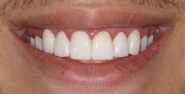 thecosmeticdentistsofaustin-caden-smile-after