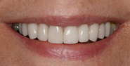 thecosmeticdentistsofaustin-diane-smile-after