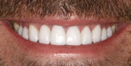 thecosmeticdentistsofaustin-fran-smile-after