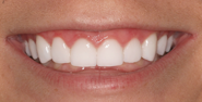 thecosmeticdentistsofaustin-victoria-smile-after