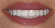 thecosmeticdentistsofaustin-zainab-smile-after