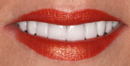 thecosmeticdentistsofaustin-Hannah-smile-after