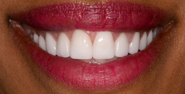 thecosmeticdentistsofaustin-Carolyn-smile-after