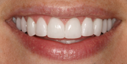thecosmeticdentistsofaustin-Heather-smile-after