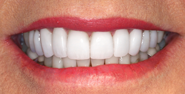 thecosmeticdentistsofaustin-Holly-smile-after