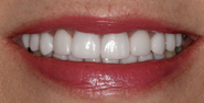 thecosmeticdentistsofaustin-Melinda-smile-after
