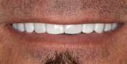 thecosmeticdentistsofaustin-Normand-smile-after