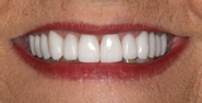 thecosmeticdentistsofaustin-Pam-smile-after