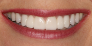 thecosmeticdentistsofaustin-Trina-smile-after