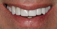 thecosmeticdentistsofaustin-Cristin-smile-after
