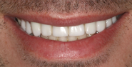 thecosmeticdentistsofaustin-Amie-smile-after