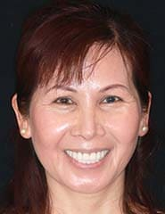 Reconstructive Dentistry | Patient Case-Huong