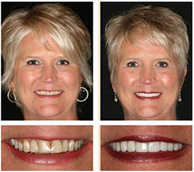 Austin Smile Makeovers | The Cosmetic Dentists of Austin