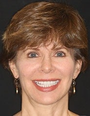 Cosmetic Dentistry | Patient Case-Gail