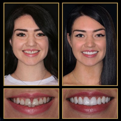 cosmetic dentist austin last time you pay