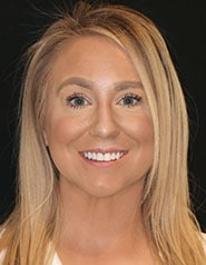 Cosmetic Dentistry   Patient Case-Jessica